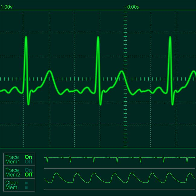 Detecting Cardiovascular Disorders in Real Time